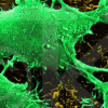 Thumbnail image for The Genomics of Cancer and Why It Matters