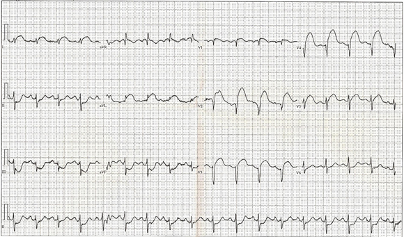 A typical 12-lead electrocardiogram of a heart attack.  Yes, believe it or not, this makes sense to most docs.