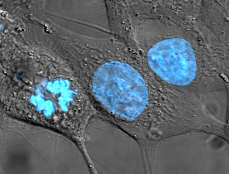 Neuron cells, with nuclei colored blue.  Just a pretty picture.